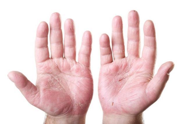 kéz ekcéma lelki okai segt a pikkelysmr kezelsben