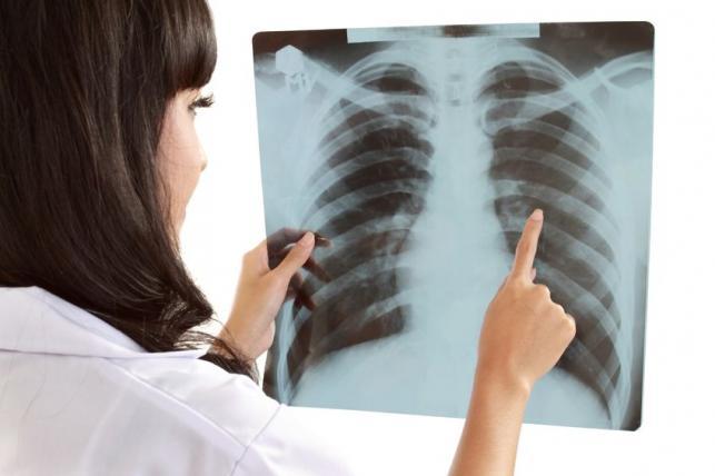 tüdő gyógyítása természetesen